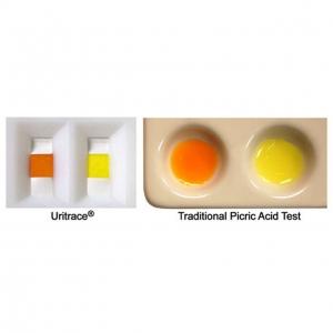 Uritrace Kit (25test/kit) Lab & Crime Scene ID